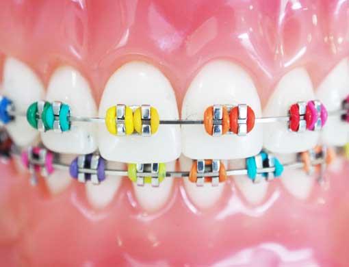 Canby Dental Braces